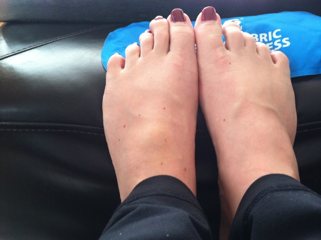 Swelling on the left foot